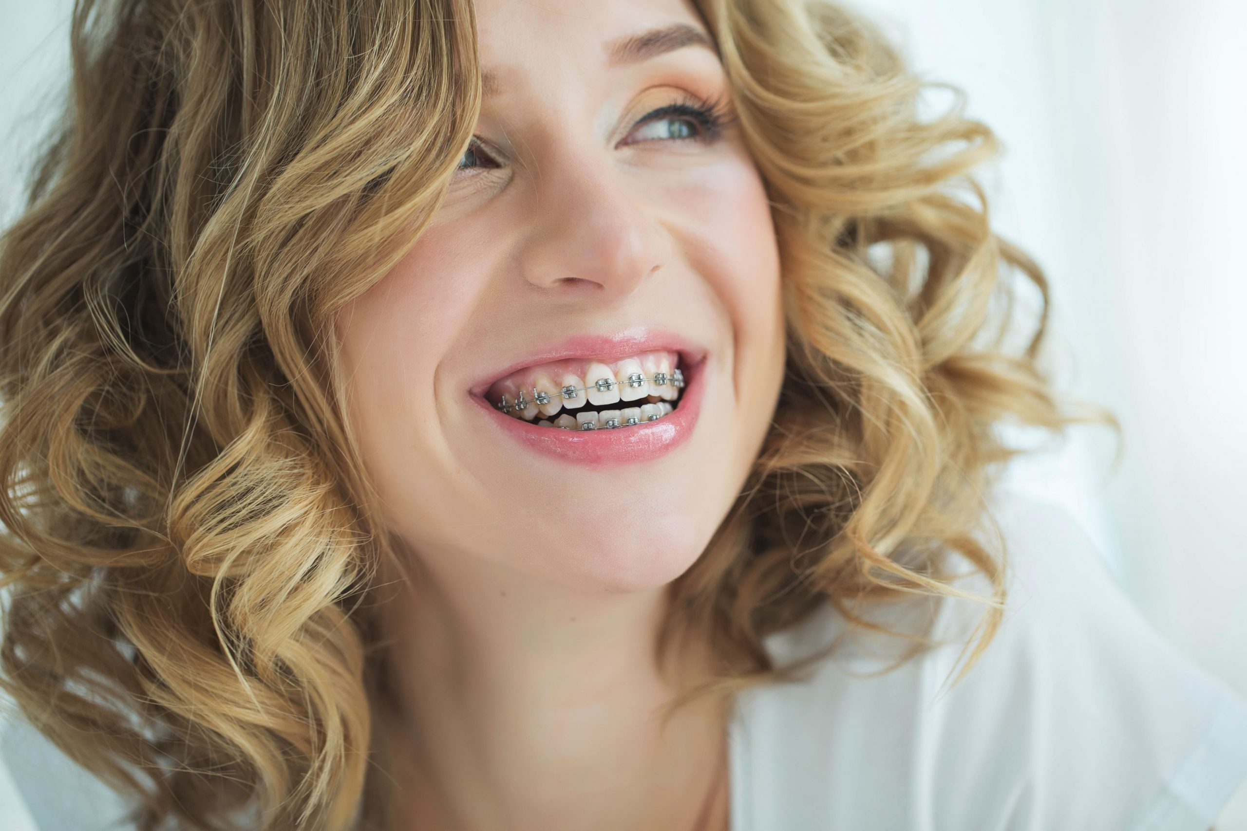 Braces-for-adults-5