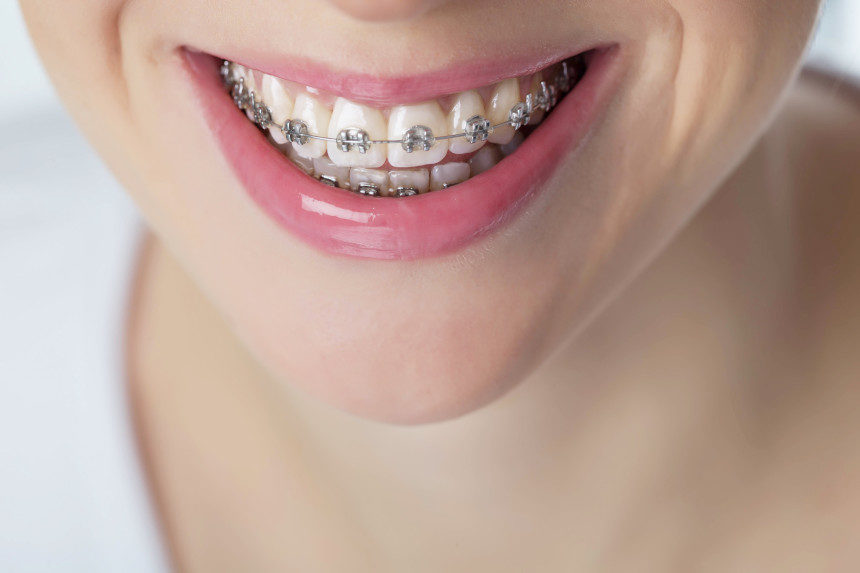 2020-09-03-woman-smiling-with-braces-shutterstock-860x573